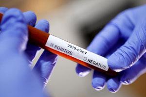 На выходных в Сумской области подтвердилось еще одно подозрение на коронавирус