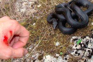 Укусила гадюка – приложи подорожник: Сумы без сыворотки от укуса змей